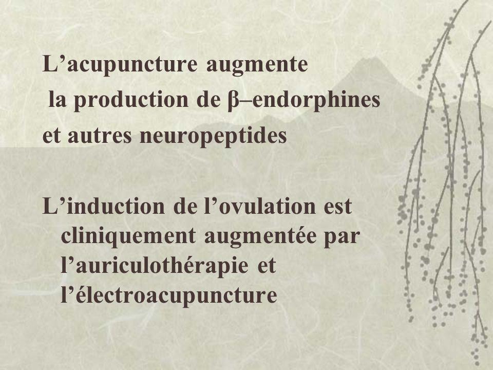 L'acupuncture augmente la production de β–endorphines