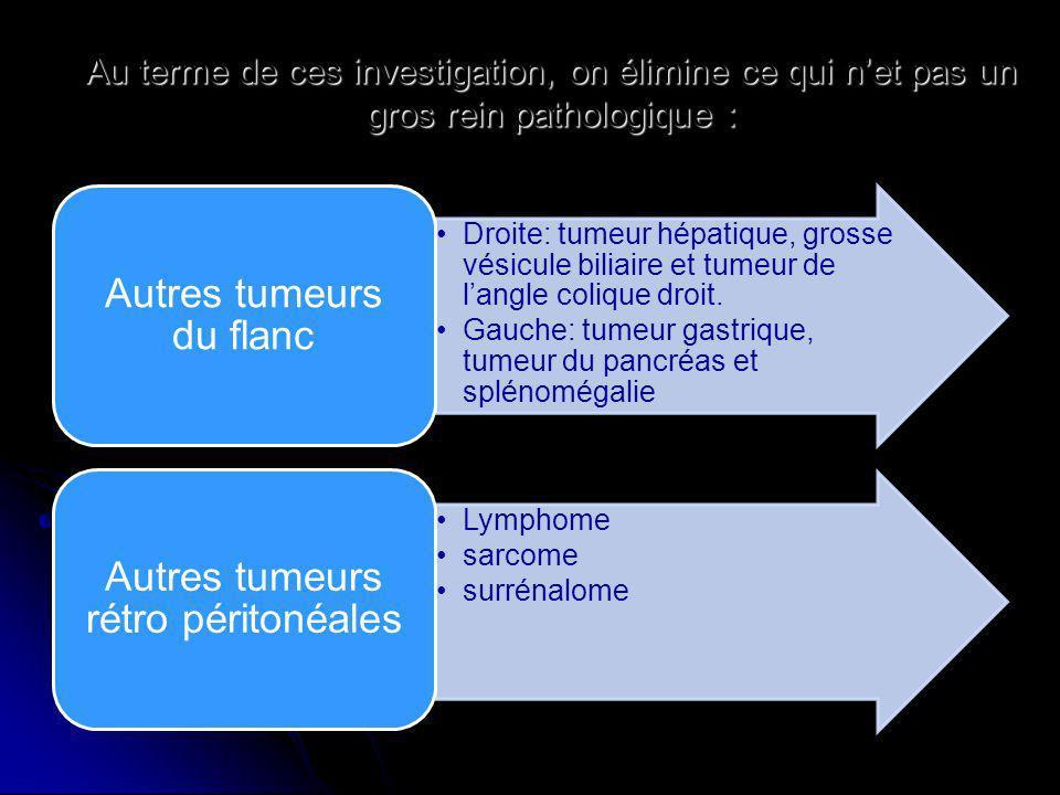 Autres tumeurs du flanc Autres tumeurs rétro péritonéales