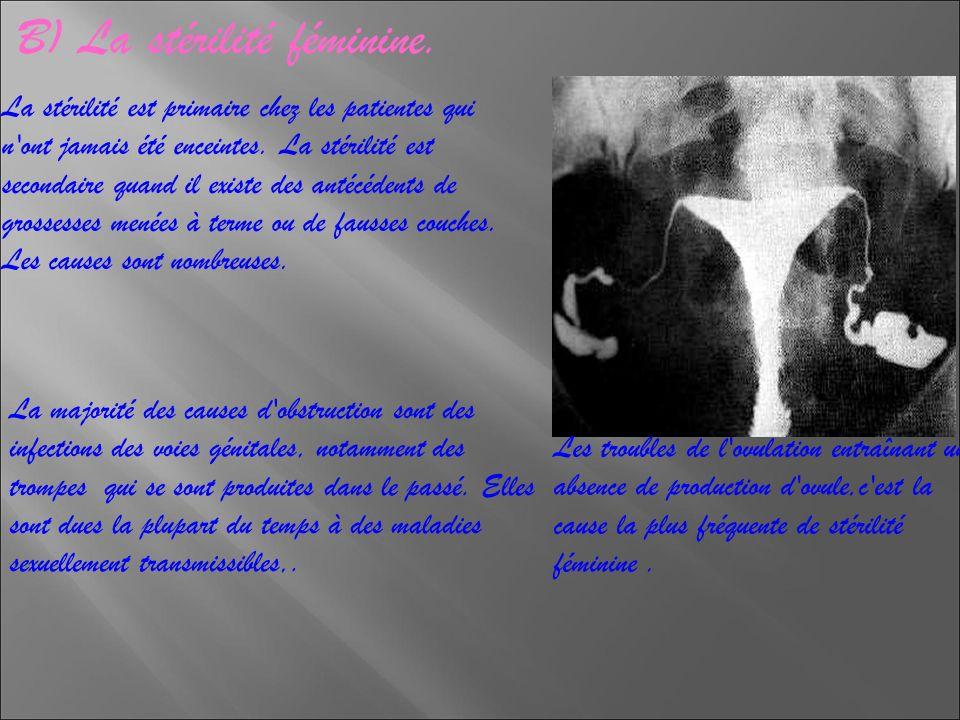 B) La stérilité féminine.