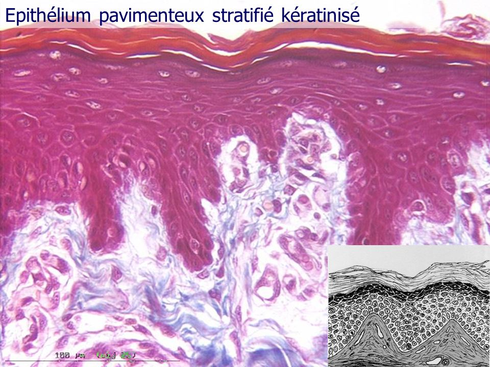 Epithélium pavimenteux stratifié kératinisé