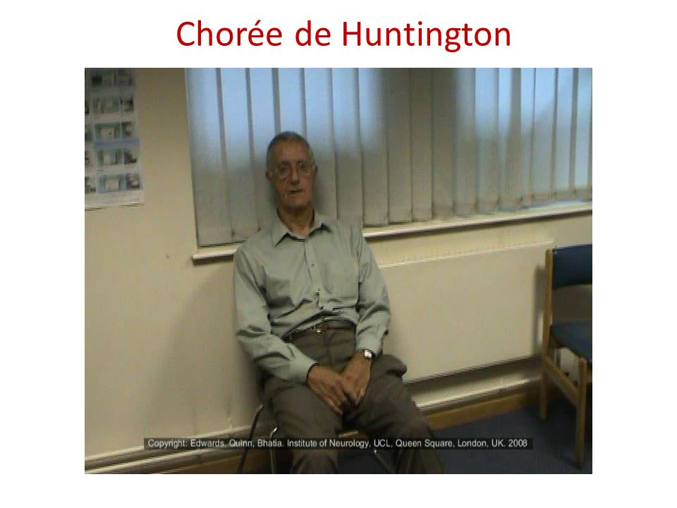 Chorée de Huntington