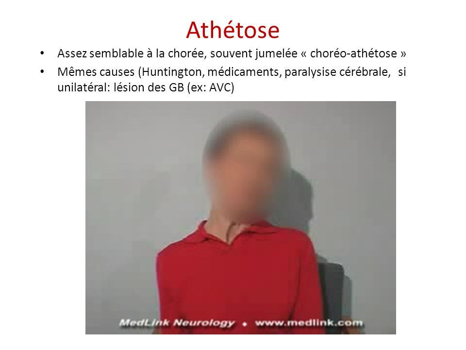 Athétose Assez semblable à la chorée, souvent jumelée « choréo-athétose »