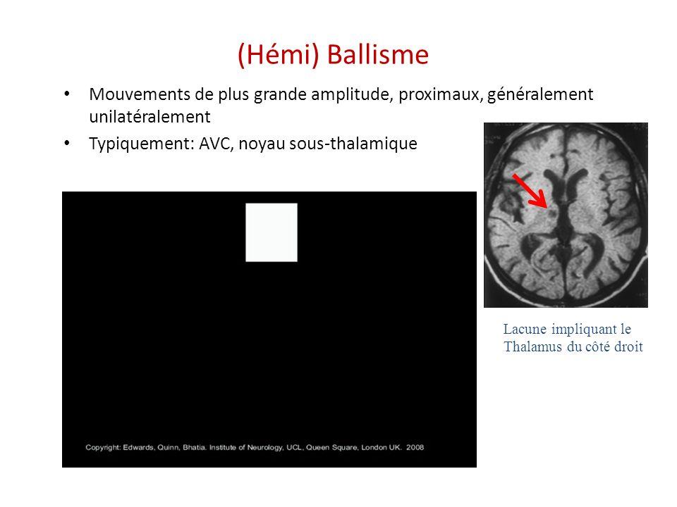 (Hémi) Ballisme Mouvements de plus grande amplitude, proximaux, généralement unilatéralement. Typiquement: AVC, noyau sous-thalamique.