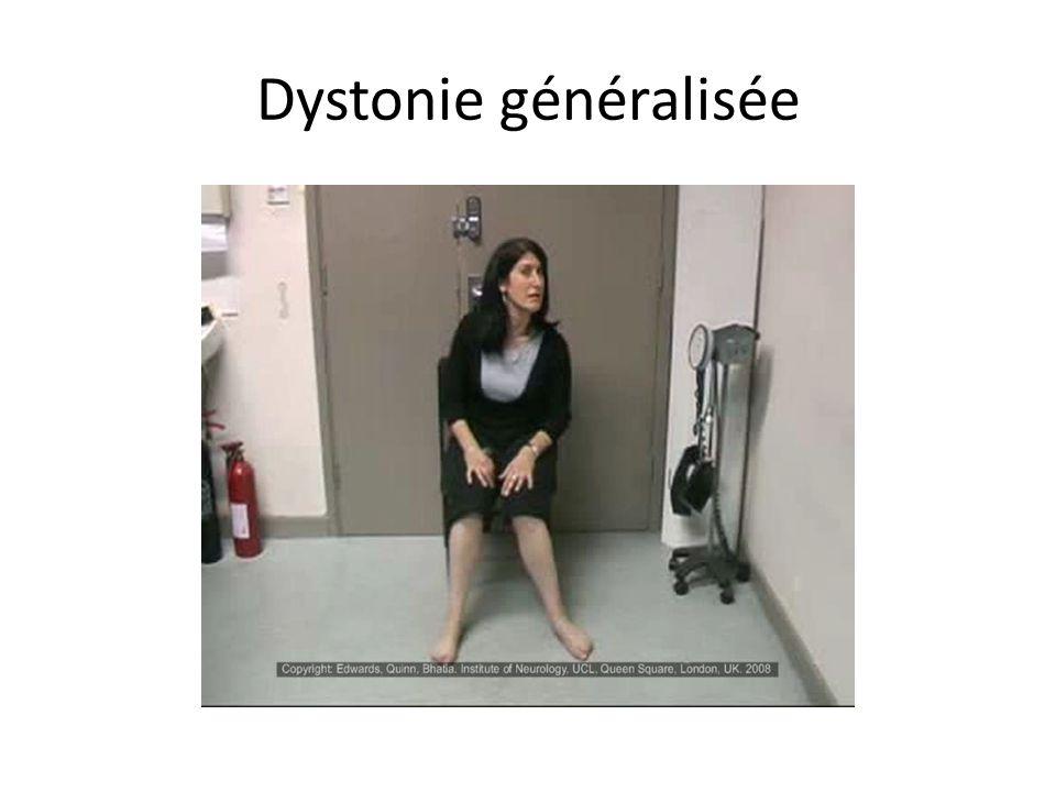Dystonie généralisée