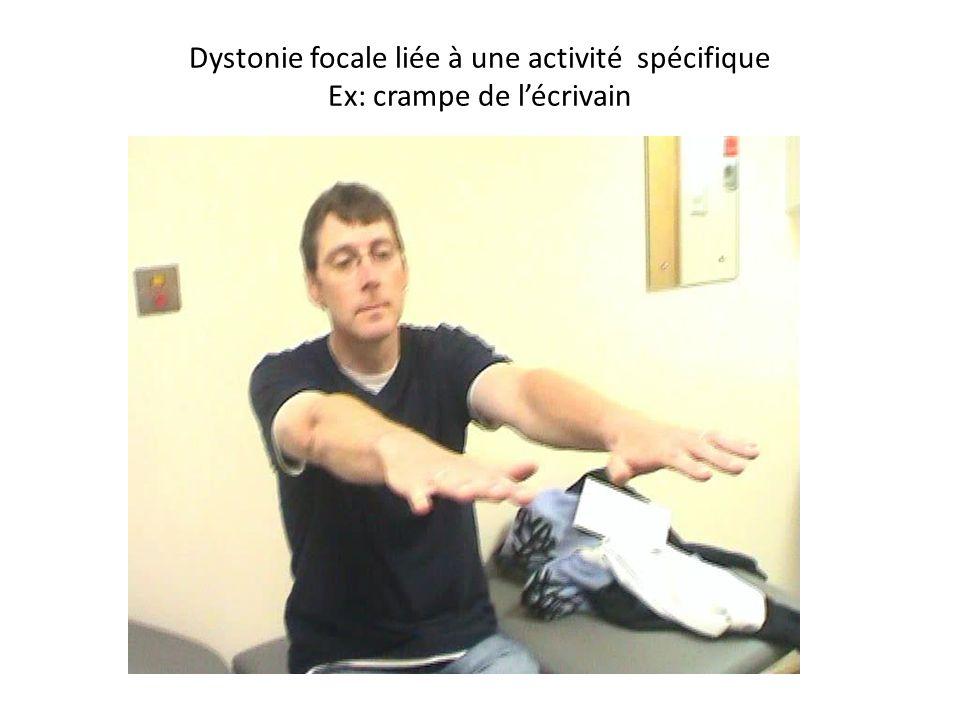 Dystonie focale liée à une activité spécifique Ex: crampe de l'écrivain