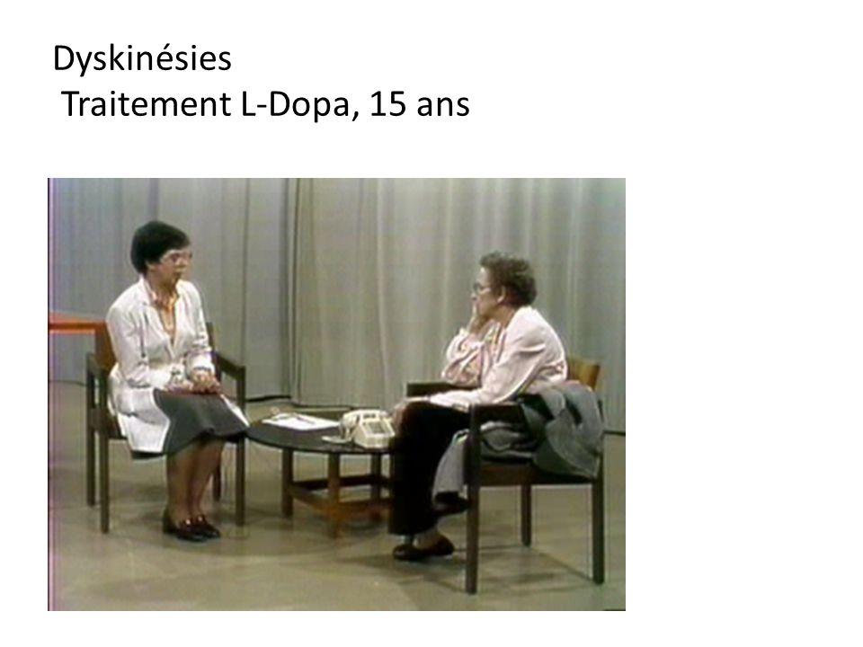Dyskinésies Traitement L-Dopa, 15 ans