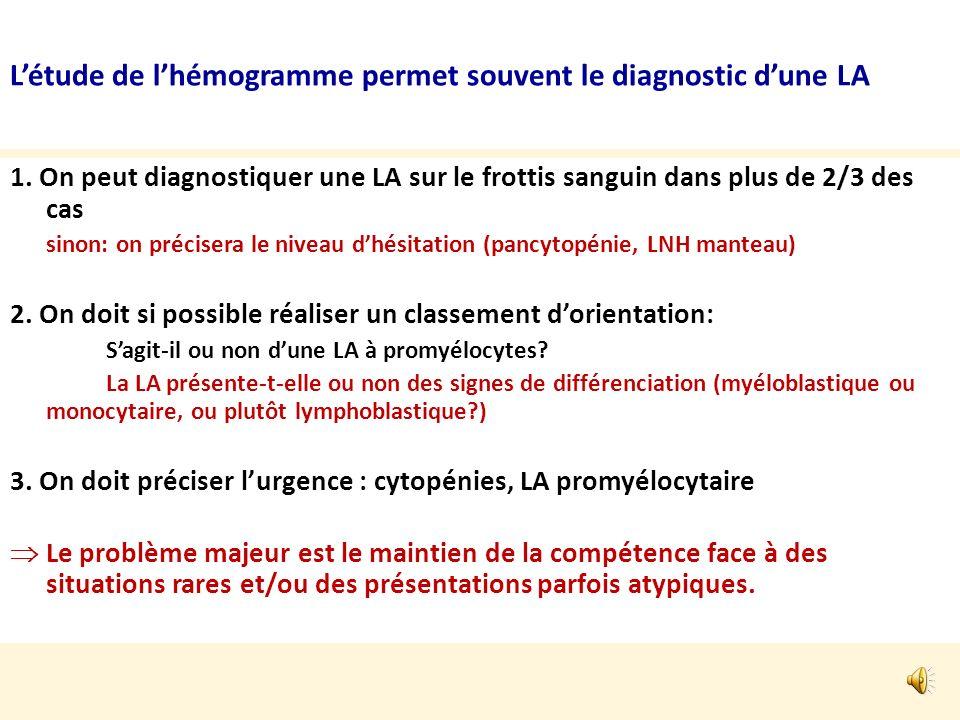 L'étude de l'hémogramme permet souvent le diagnostic d'une LA