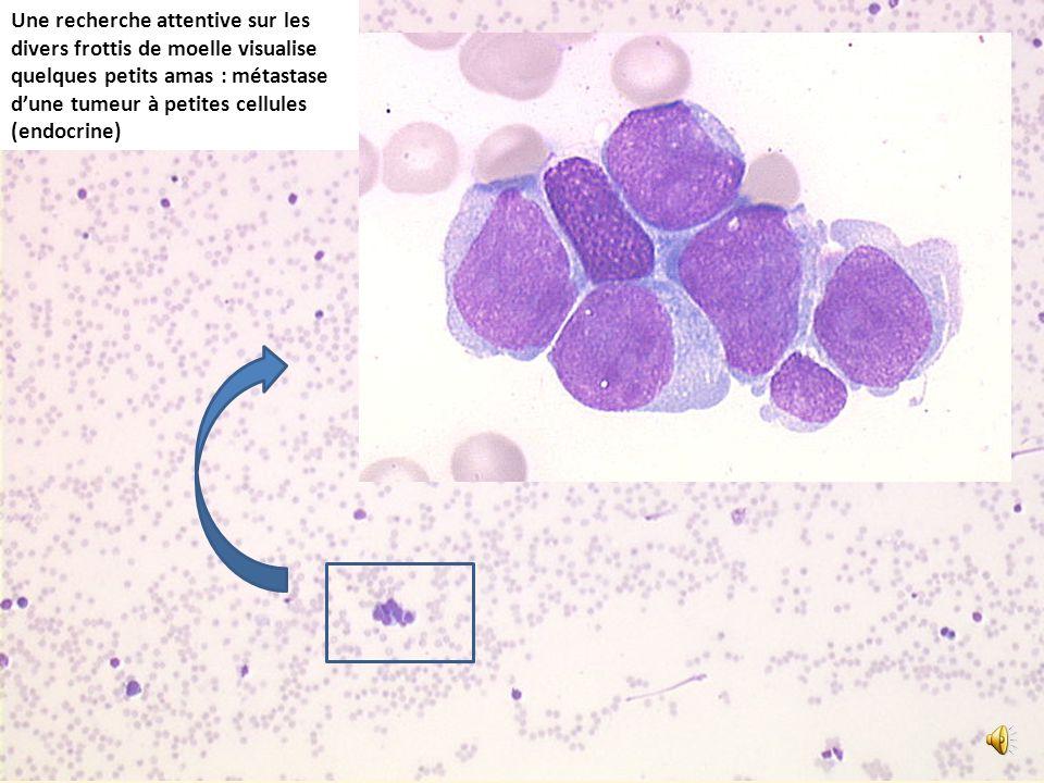 Une recherche attentive sur les divers frottis de moelle visualise quelques petits amas : métastase d'une tumeur à petites cellules (endocrine)