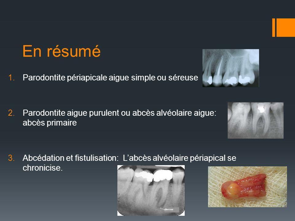 En résumé Parodontite périapicale aigue simple ou séreuse