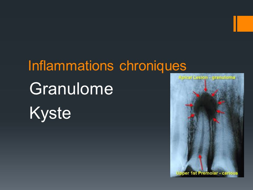 Inflammations chroniques
