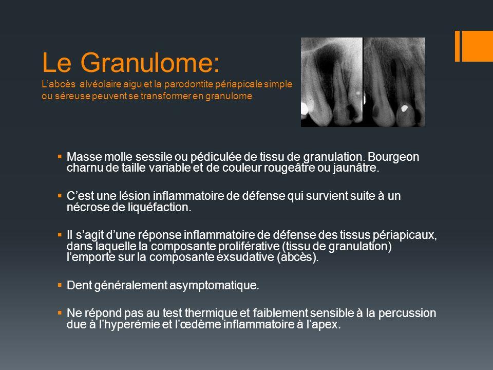 Le Granulome: L'abcès alvéolaire aigu et la parodontite périapicale simple ou séreuse peuvent se transformer en granulome
