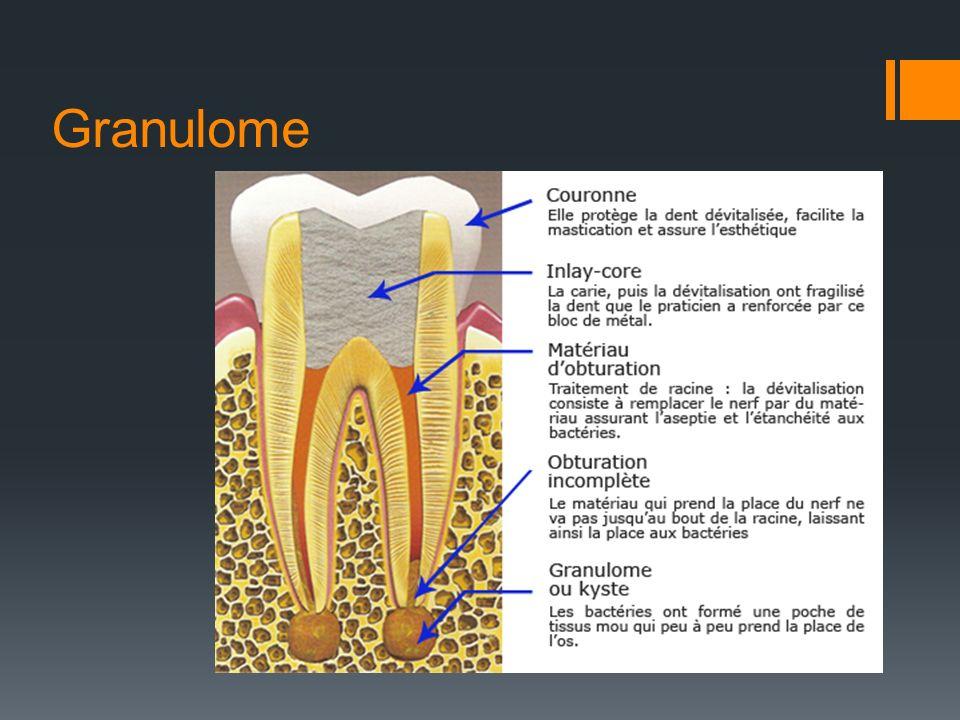 Granulome