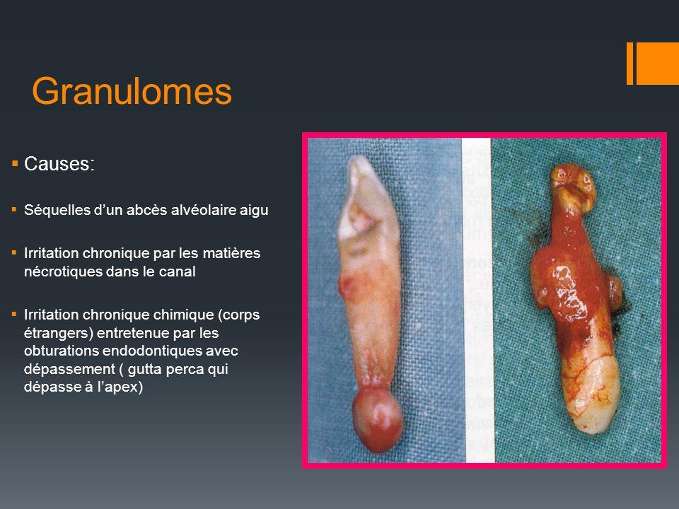 Granulomes Causes: Séquelles d'un abcès alvéolaire aigu
