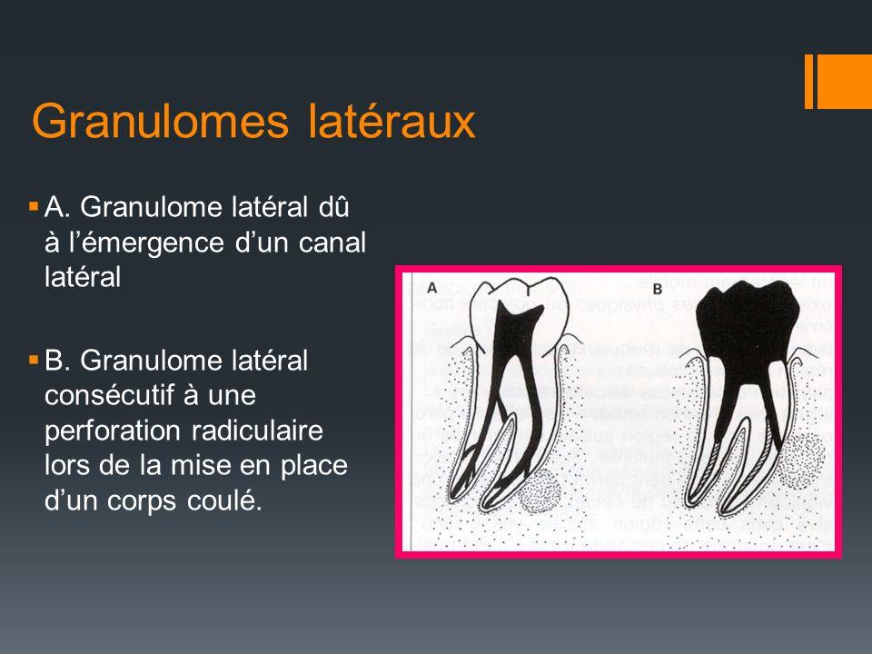 Granulomes latéraux A. Granulome latéral dû à l'émergence d'un canal latéral.