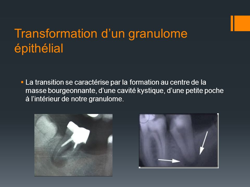 Transformation d'un granulome épithélial
