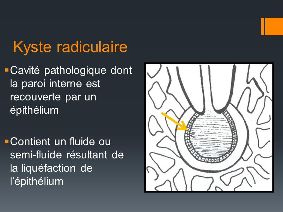 Kyste radiculaire Cavité pathologique dont la paroi interne est recouverte par un épithélium.