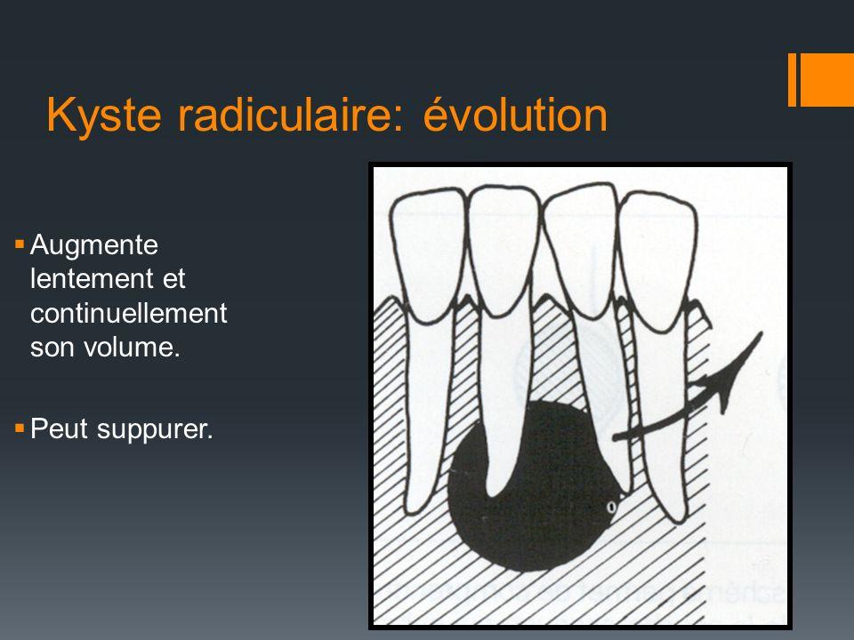 Kyste radiculaire: évolution