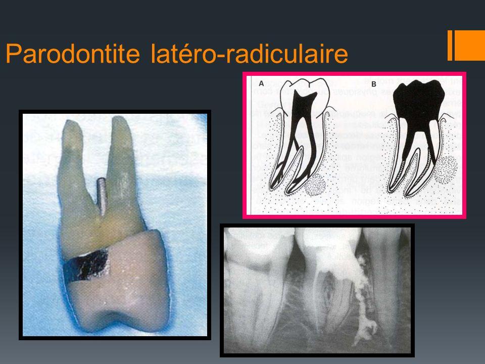Parodontite latéro-radiculaire