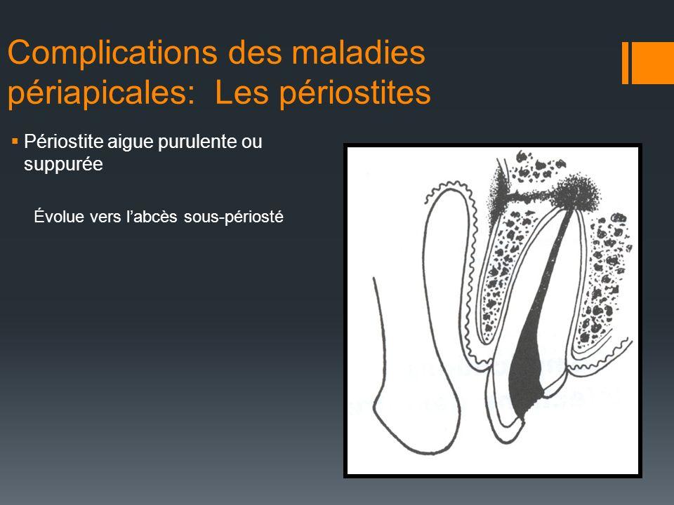 Complications des maladies périapicales: Les périostites