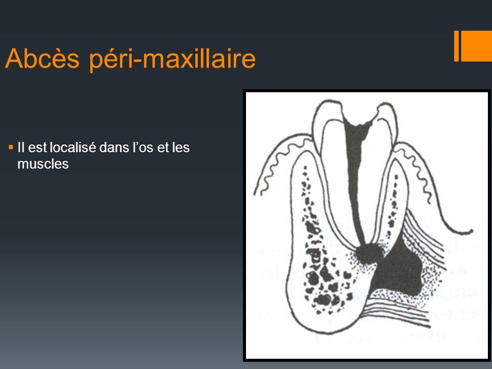 Abcès péri-maxillaire