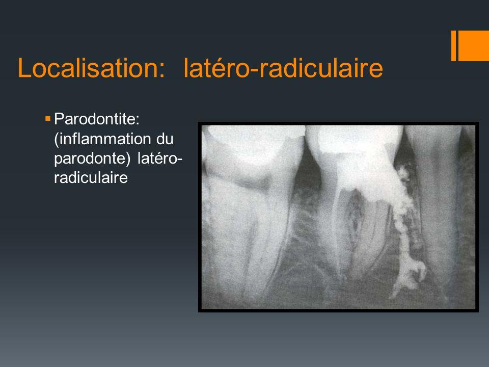 Localisation: latéro-radiculaire