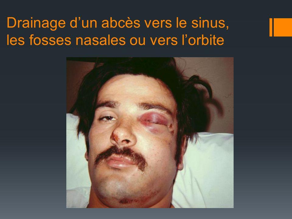 Drainage d'un abcès vers le sinus, les fosses nasales ou vers l'orbite
