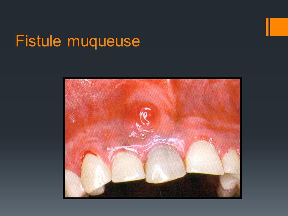 Fistule muqueuse