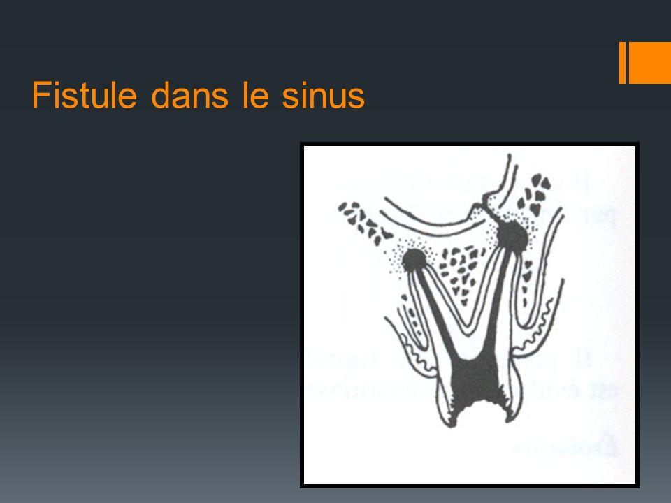 Fistule dans le sinus