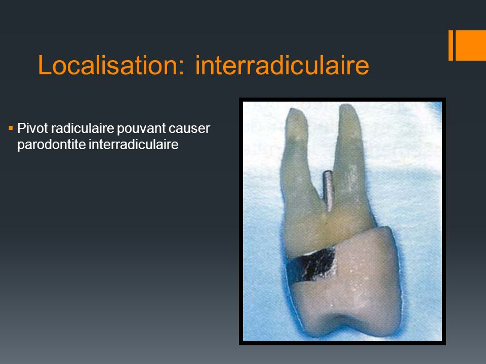 Localisation: interradiculaire