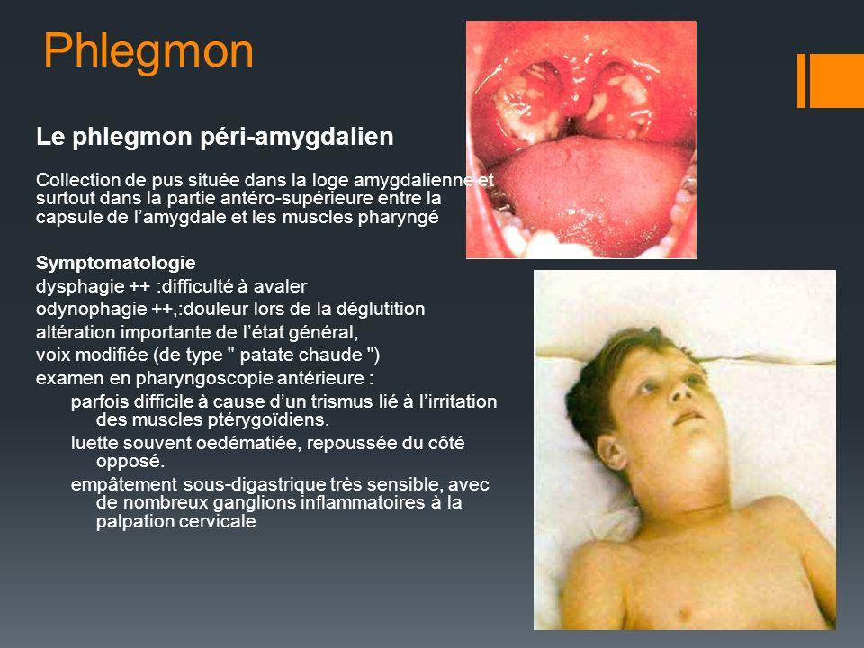 Phlegmon Le phlegmon péri-amygdalien