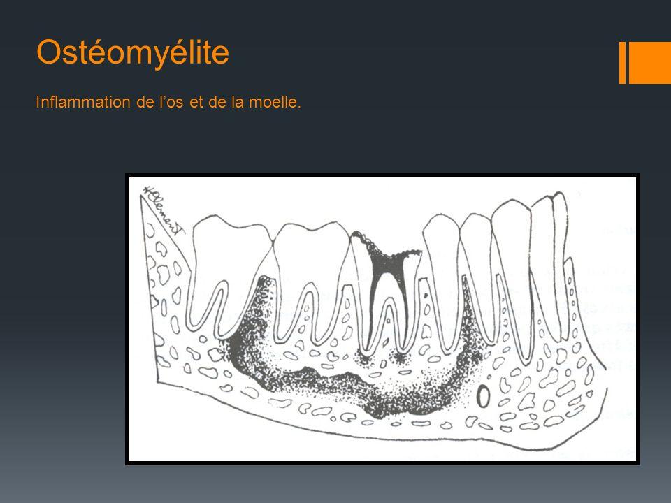Ostéomyélite Inflammation de l'os et de la moelle.