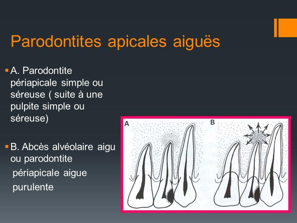 Parodontites apicales aiguës