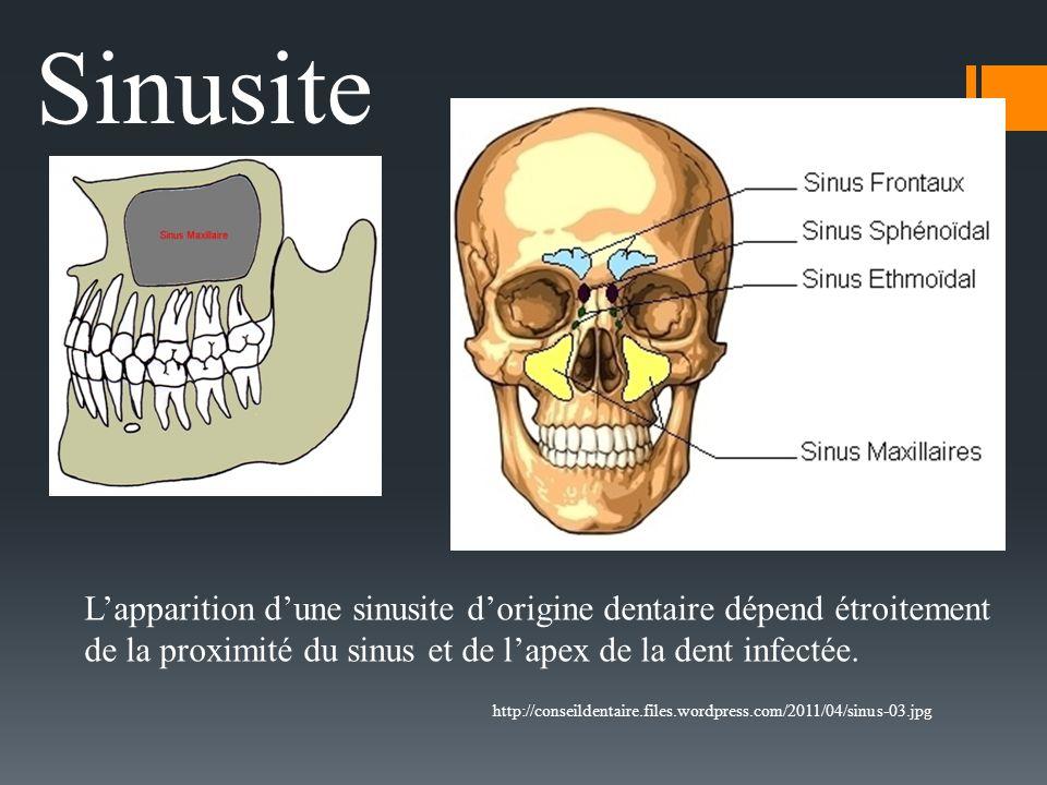 Sinusite L'apparition d'une sinusite d'origine dentaire dépend étroitement. de la proximité du sinus et de l'apex de la dent infectée.
