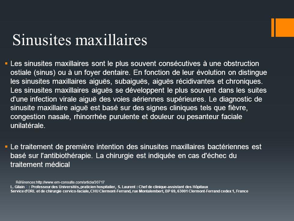 Sinusites maxillaires