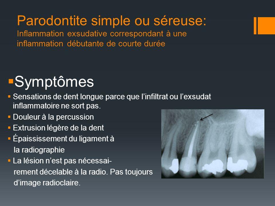 Parodontite simple ou séreuse: Inflammation exsudative correspondant à une inflammation débutante de courte durée