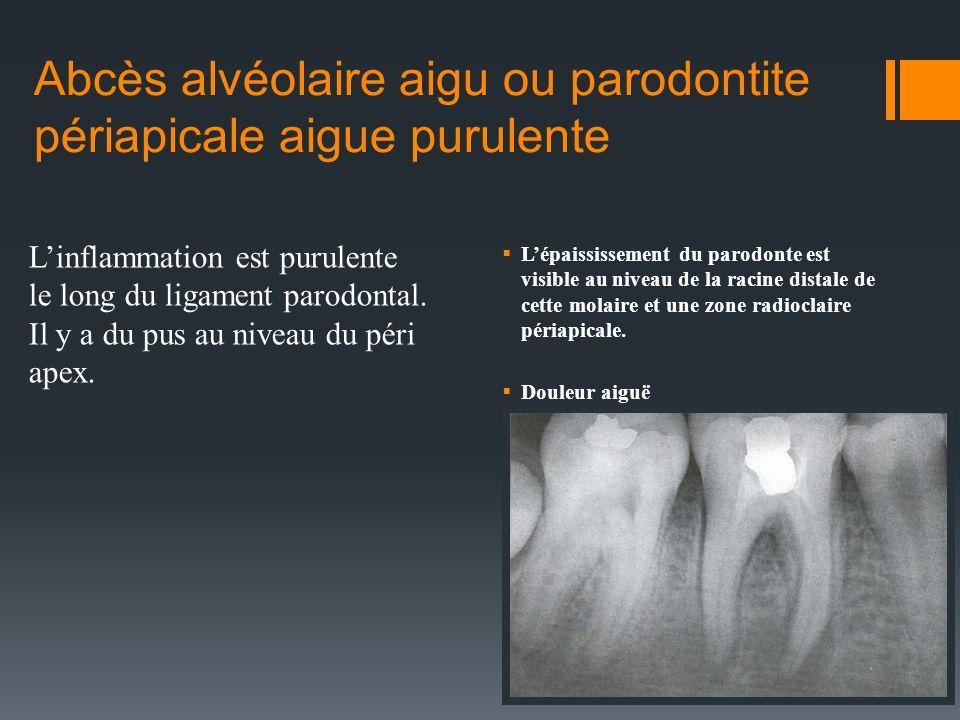 Abcès alvéolaire aigu ou parodontite périapicale aigue purulente