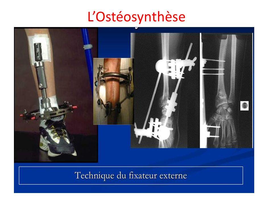 L'Ostéosynthèse