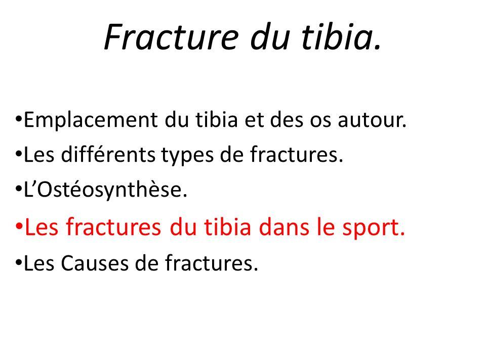 Fracture du tibia. Les fractures du tibia dans le sport.