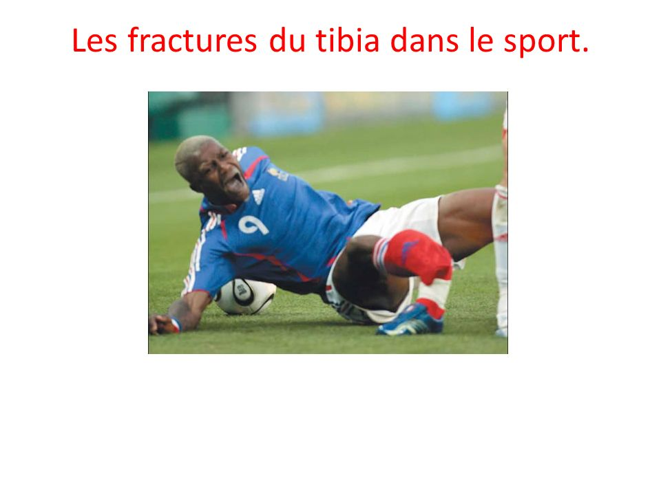 Les fractures du tibia dans le sport.