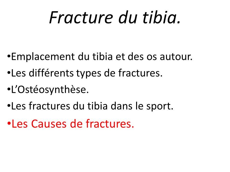 Fracture du tibia. Les Causes de fractures.