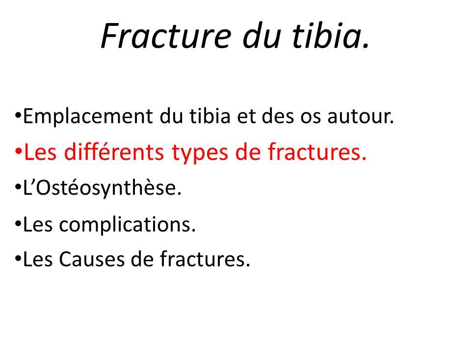 Fracture du tibia. Les différents types de fractures.