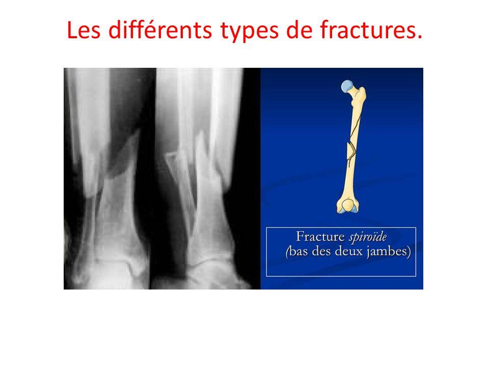 Les différents types de fractures.