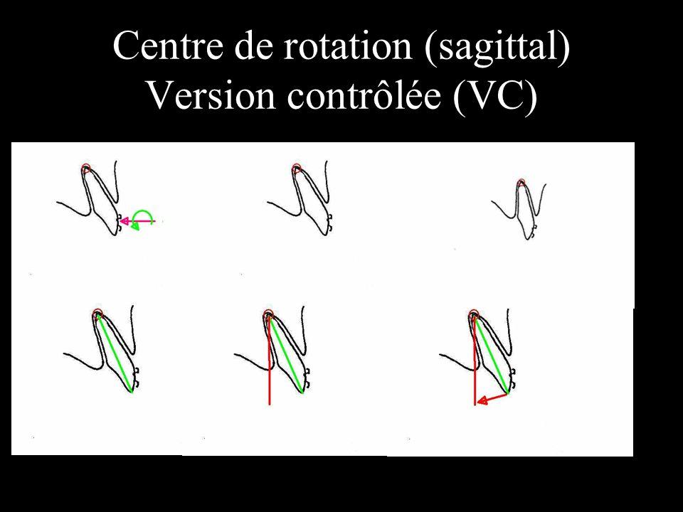 Centre de rotation (sagittal) Version contrôlée (VC)