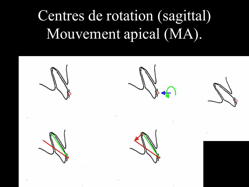 Centres de rotation (sagittal) Mouvement apical (MA).