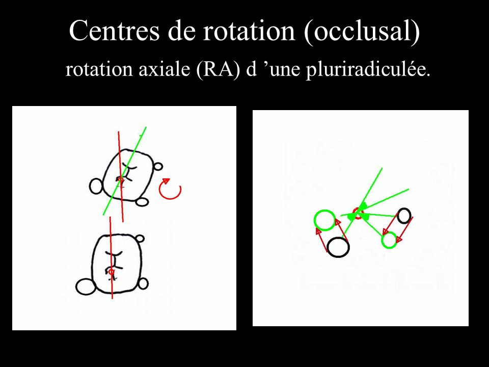 Centres de rotation (occlusal) rotation axiale (RA) d 'une pluriradiculée.