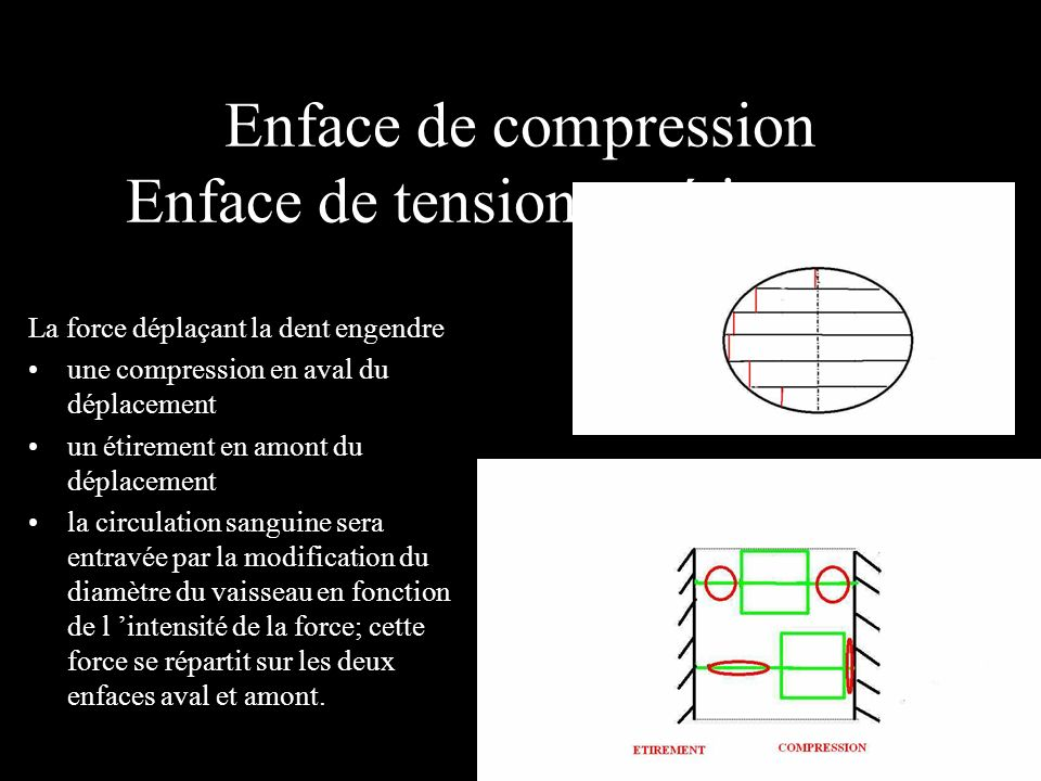 Enface de compression Enface de tension ou étirement