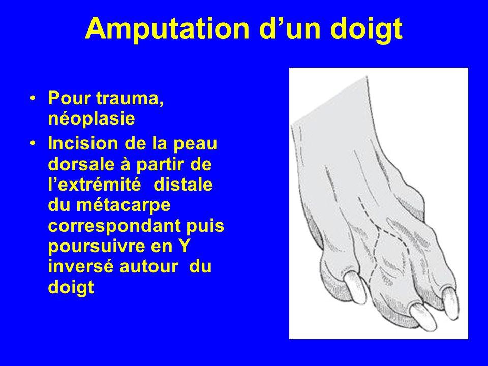 Amputation d'un doigt Pour trauma, néoplasie