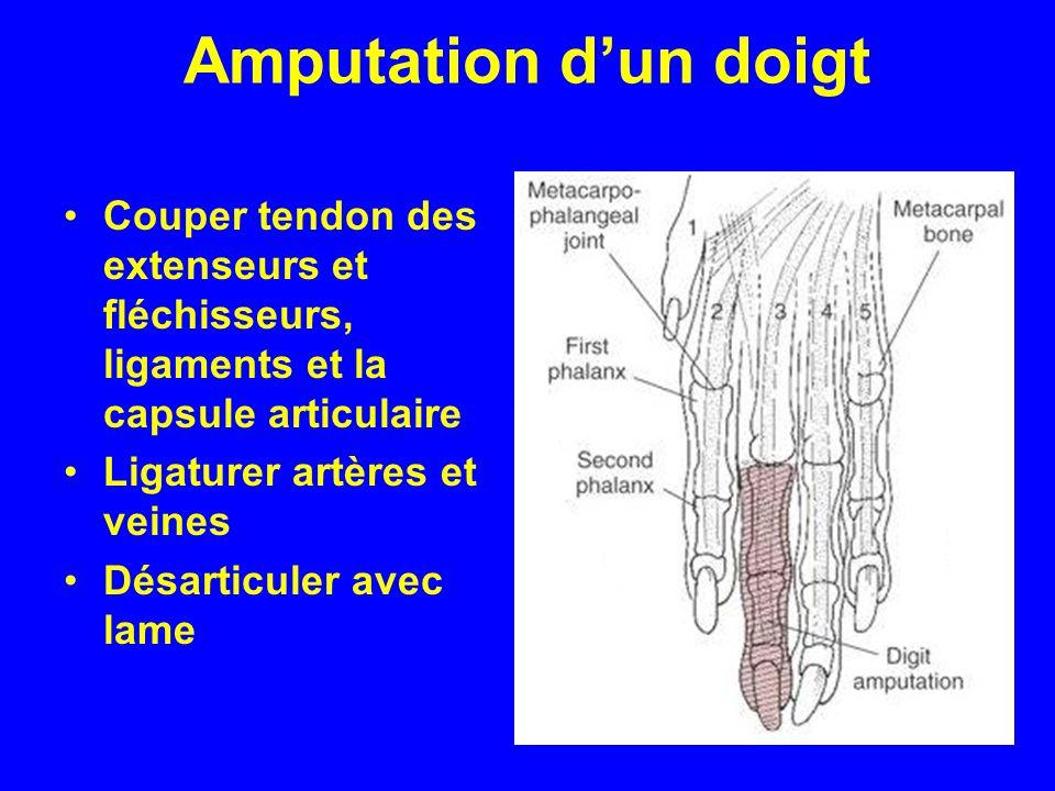 Amputation d'un doigt Couper tendon des extenseurs et fléchisseurs, ligaments et la capsule articulaire.