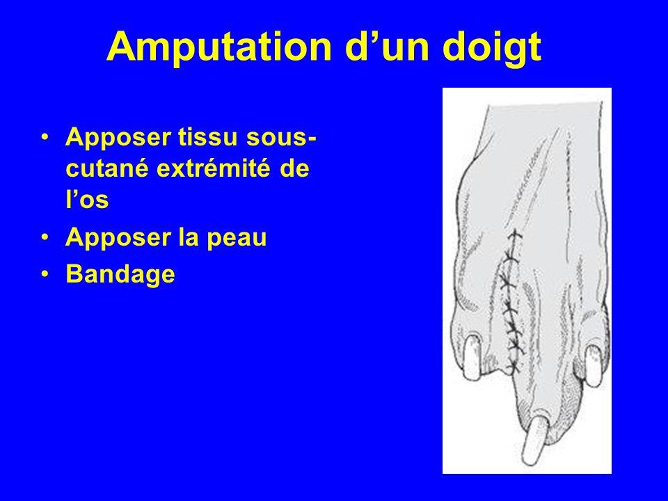 Amputation d'un doigt Apposer tissu sous-cutané extrémité de l'os