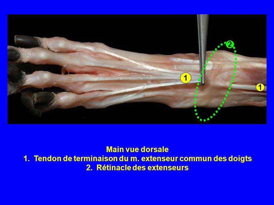Tendon de terminaison du m. extenseur commun des doigts